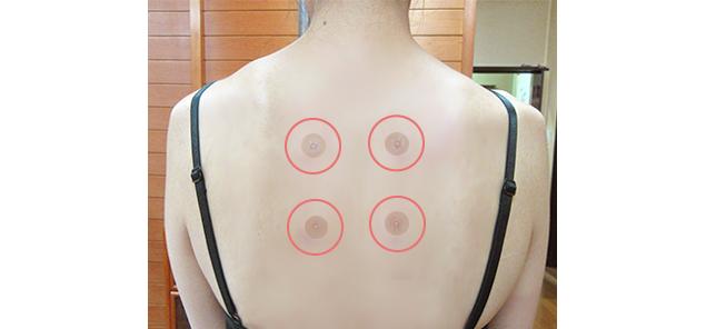 肩甲骨の内側にパッチ鍼を貼るのもおすすめ - Web音遊人